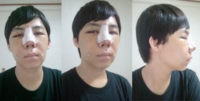5 hari sesudah operasi plastik mata, operasi plastik hidung, anti aging di Wonjin