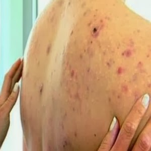 how to get rid of back acne scars in a week