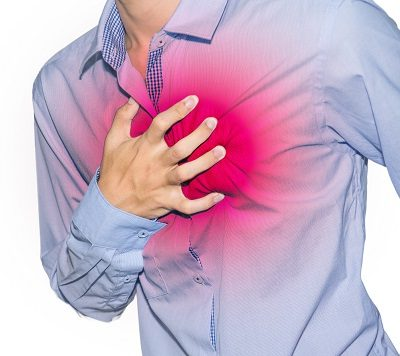 Patulous Esophagus Definition, Symptoms, Causes, Treatment