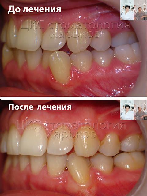 до и после лечения эластиками