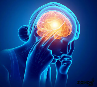 HOW TO GET RID OF MIGRAINE HEADACHES 6