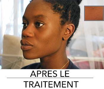 routine beauté peau noire, tâches d'hyperpigmentation, tâche peau noire, blog afro, blog mode marseille