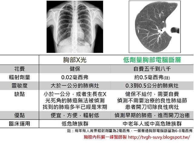 胸部X光V.S.LDCT(經蘇一峰醫師本人同意引用)