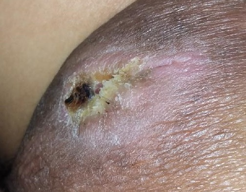 Skin Picking Disorder, Ischial Ulcer