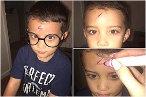 Pós lesão, Mãe veste filho de Harry Potter e viraliza nas redes sociais
