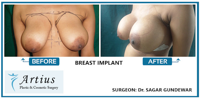 Fat transfer breast augmentation cost