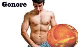 Image Macam penyakit kelamin seperti gonore