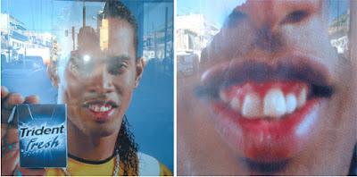 """<Imgsrc =""""Ronaldhino-premonición-de-problemas periodontales-en 2004.jpg"""" width = """"593"""" height """"294"""" border = """"0"""" alt = """"Imagen de encía sana"""">"""