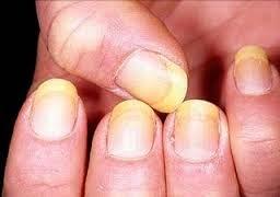 cara tradisional mengobati penyakit kuning paling manjur