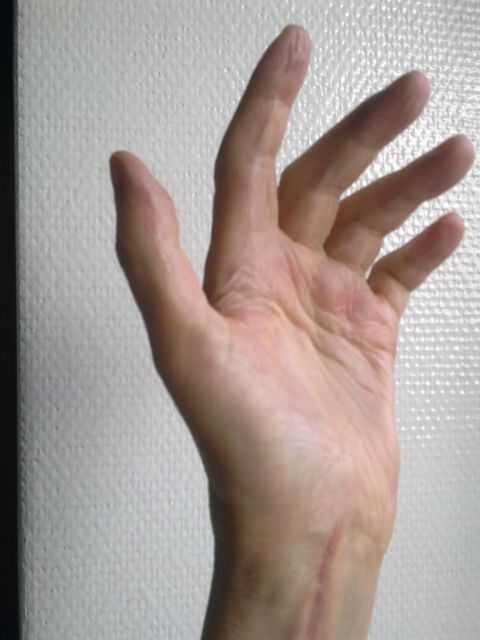Handrehabilitationcase with Dupuytren's contracture : A