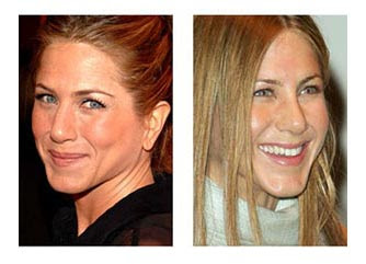 Celebrity Nose Jobs Jennifer Aniston Nose Job Before And After