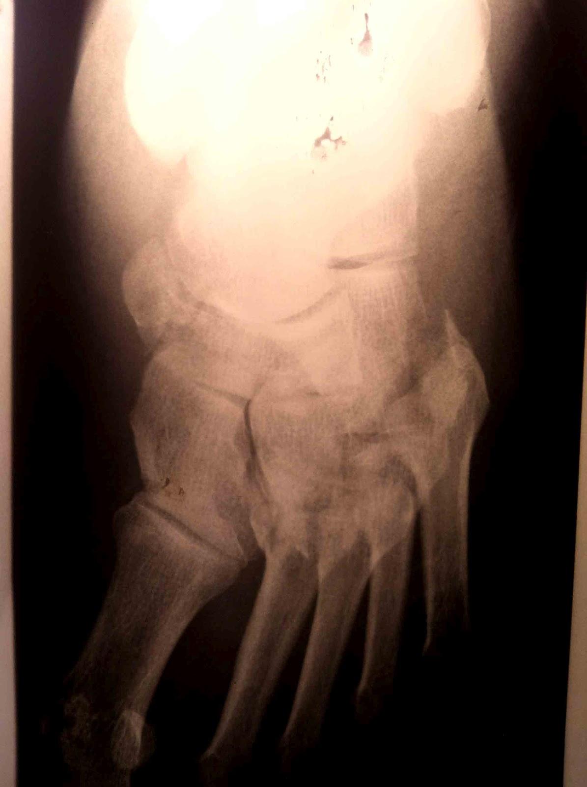 cirugia lesion de lisfranc