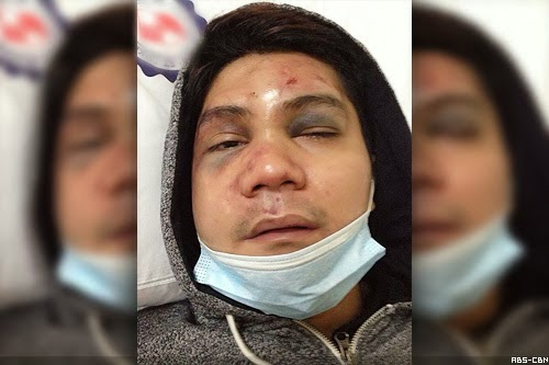 Vhong Navarro Beaten-up and Threatened inside Fort Condo