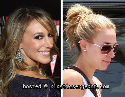 haylie duff plastic surgery before and after nose jobs and