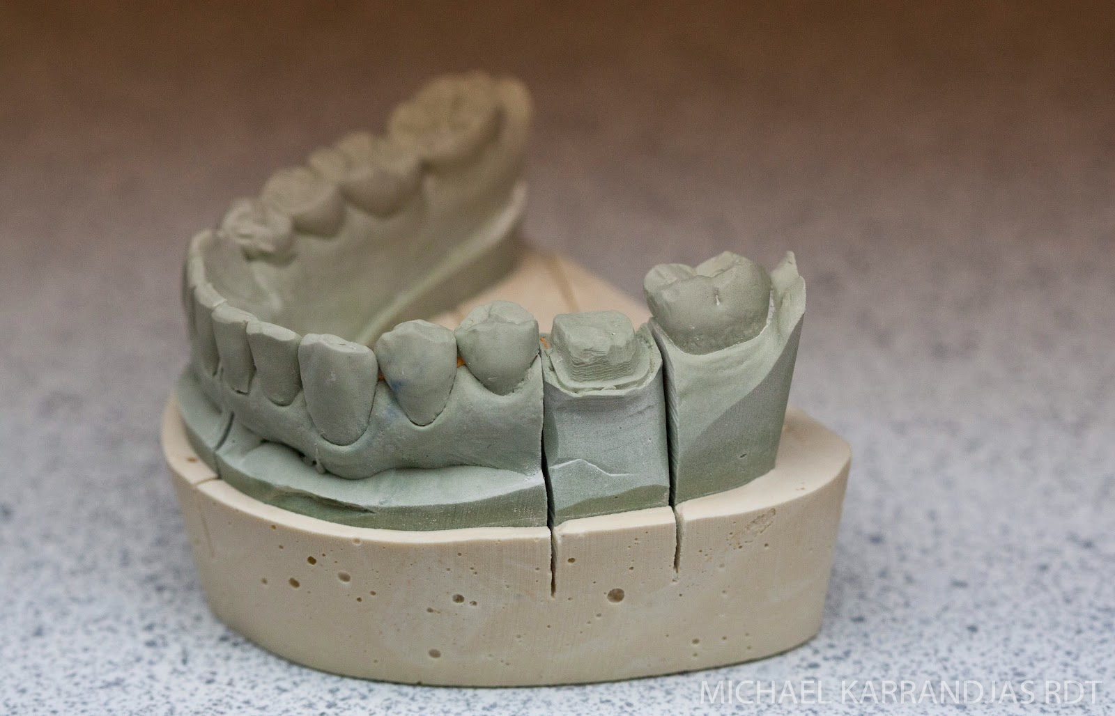 Dental Lab Model Fabrication | Making Noise And Drinking Beer on Granite Models  id=23077