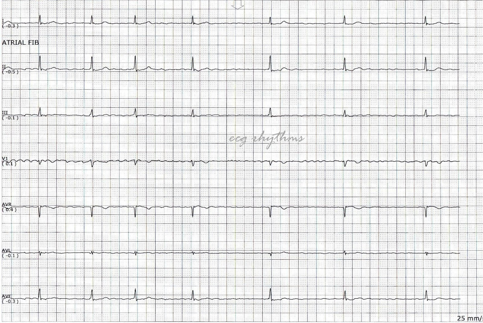 ECG Rhythms: Basic ECG Interpretation