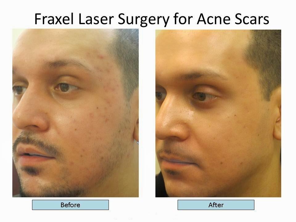 Laser Acne Scar Removal Laser Acne Scar Removal