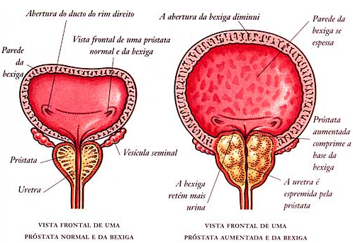valores de prostata normal