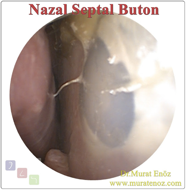 Septal button application - Silicone septal button - What is a nasal septal button? - Negative health effects of nasal septum perforation - Nasal septal button application for hole in the nasal septum - Patients with septum perforation - Perforation of nasal septum - Septal button indications - Septal button contraindications - How to insert septal buttons - What to do after septal button application - Patient care after nasal septal button application - When should the septal button be removed?