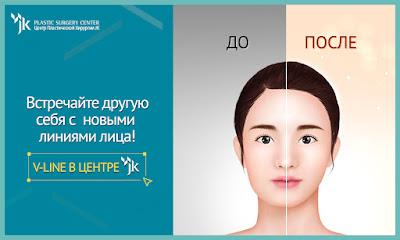пластческая хирургия в корее, Мандибулопластика, Vline,  пластика челюсти в корее
