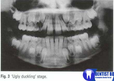 http://i0.wp.com/4.bp.blogspot.com/-wp2lXnsWzfg/T1ksu-jQt-I/AAAAAAAABcM/Yze5unaYOnM/s1600/Orthodontics3.jpg