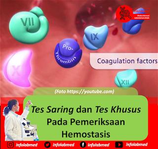 screening hemostasis,hemostasis screening test,hemostasis screening test pdf,hemostasis screening,screening test for hemostasis,screening test for secondary hemostasis,hemostasis,hemostasis adalah,hemostasis primer dan sekunder,hemostasis pdf,hemostasis adalah pdf,hemostasis process,hemostasis ppt,hemostasis pdf indonesia,hemostasis pathway,hemostasis aptt adalah,hemostasis disorder,hemostasis dan trombosis,hemostasis mechanism,hemostasis pt adalah,hemostasis is,hemostasis tersier,hemostasis test,hemostasis and coagulation,hemostasis intrinsic and extrinsic pathway,hemostasis vs homeostasis,hemostasis inr adalah,hemostasis and thrombosis,hemostasis achieved,homeostasis anatomy definition,hemostasis and thrombosis center of nevada,hemostasis analyzer,hemostasis and blood coagulation,hemostasis and thrombosis research society,hemostasis agents,hemostasis animation,hemostasis and thrombosis pdf,hemostasis anatomy,hemostasis assessment,hemostasis and blood clotting,hemostasis and blood coagulation ppt,hemostasis and homeostasis differences,hemostasis and fibrinolysis,hemostasis blood clotting,hemostasis balance,hemostasis blood clotting process,hemostasis begins with,hemostasis blood test,hemostasis biology,hemostasis book,hemostasis by dr najeeb,hemostasis blood clotting worksheet,hemostasis biochemistry,hemostasis book pdf,homeostasis definition biology,hemostasis band,hemostasis bleeding time,hemostasis basics,hemostasis bovie electrocautery,hemostasis bleeding and thrombosis in liver disease,hemostatic bandages,hemostasis baxter,hemostasis blood coagulation ppt