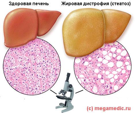 Сердечно сосудистые болезни и их лечение