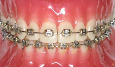 Quy trình tiến hành bọc răng sứ thẩm mỹ
