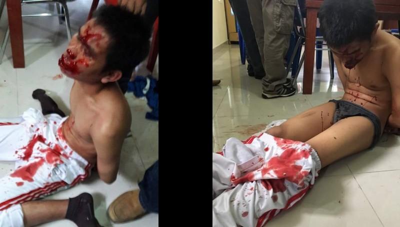 Kondisi Ivan Armadi Hasugian yang penuh luka
