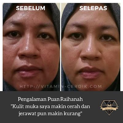 Testimoni YOUTH Skincare Shaklee Berumur 40an 50an 60an 70an