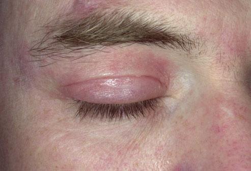 eczema eyelids - photo #20