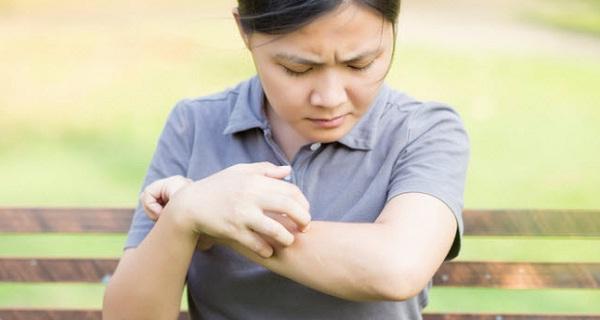 7 cách nhận biết da nhạy cảm
