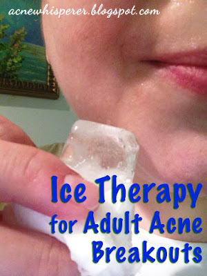 Ice Therapy for sudden Adult Acne breakouts