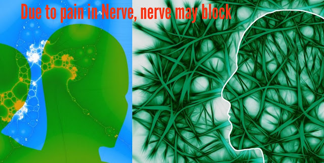 How to overcome from pain in nerves by home treatment