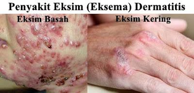 Gejala Penyakit Eksim