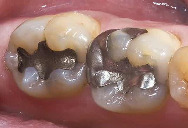 Dokter gigi (Drg) Stephanie Hadiyanto dari RS Elisabeth Semarang  menyampaikan 5fb1046950