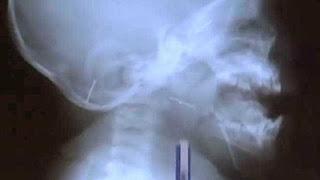 Bebê é perfurado com agulhas em ritual para 'afastar espíritos ruins