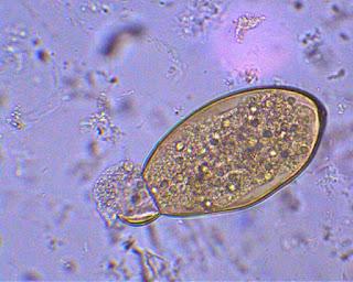 fascicola hepatică