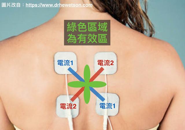 好痛痛 中頻向量干擾波原理 下背痛 上背痛 止痛 門閥理論 門閥控制理論 肩膀痛 膝蓋痛