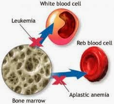Cara Alami Mengatasi Penyakit Kanker Darah   Obat ...