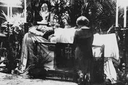 Résultat d'images pour Septicémie foudroyante : une personne meurt toutes les 3 secondes.