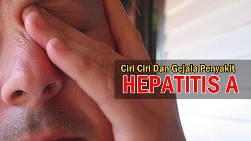 Ciri ciri Dan Gejala Penyakit Hepatitis A