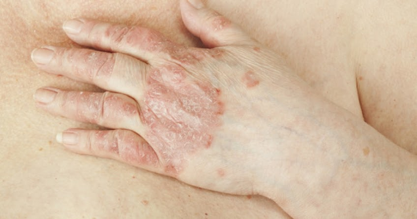 Summary -> Scrotal Eczema Symptoms Causes And Treatment