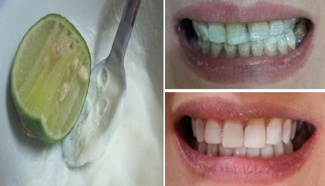 Cara Mudah Dan Efektif Memutihkan Gigi Anda Hanya Dengan Modal Tak