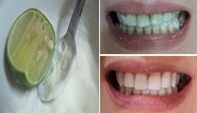 Cara Memutihkan Gigi Dengan Cepat Dan Berkesan Brad Erva Doce Info