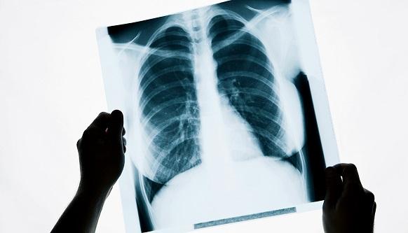 Röntgen Nedir? Tarihi Hakkında Bilgi