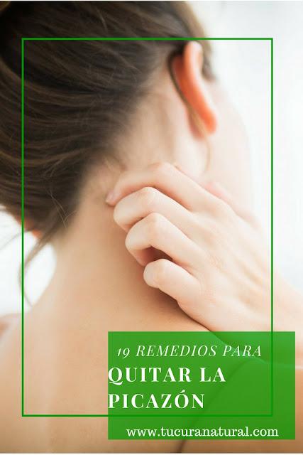 9 Remedios caseros para la picazón del cuerpo