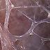 Fascia: Un pedazo ocultado del rompecabezas del dolor de la fibromialgia