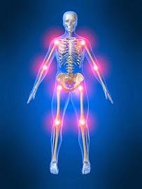 Mengapa Tulang Sendi Sering Mengalami Sakit