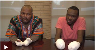 Two Ghanian Asylum seekers lose fingers to Frostbite